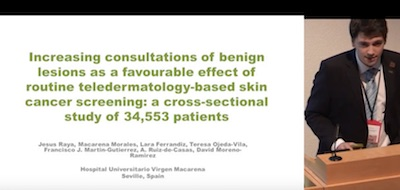An Increasing Frequency Of Seborrheic Keratosis As Consequence Of Improved Early Detection Of Skin Cancerthrough Teledermatology