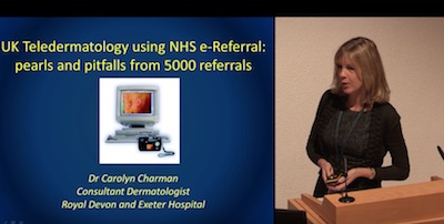 UK Teledermatology Using National Electronic Referral Pathways (NHS E-Referral); Pearls And Pitfallsfrom Over 4000 Referrals