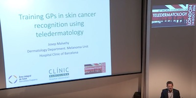 Training GPs in skin cancer recognition using teledermatology