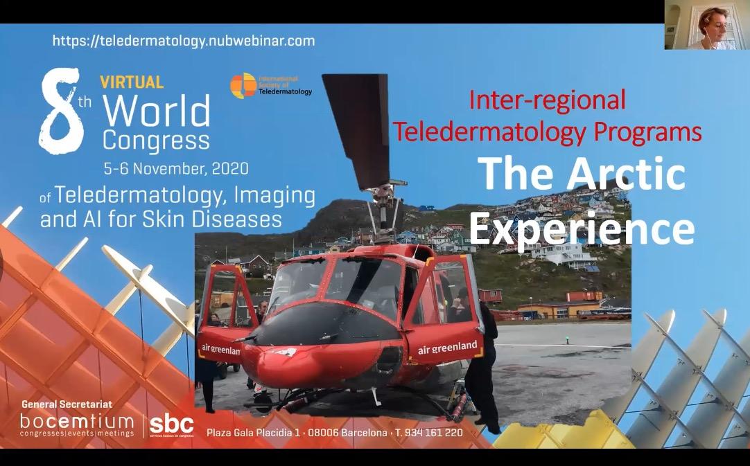 Inter-regional teledermatology programs: The Arctic Experience
